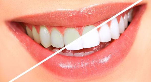 lasersko beljenje zuba u stomatoloskoj ordinaciji beograd